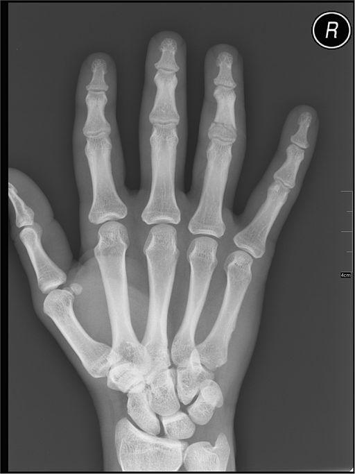 radiographie à domicile